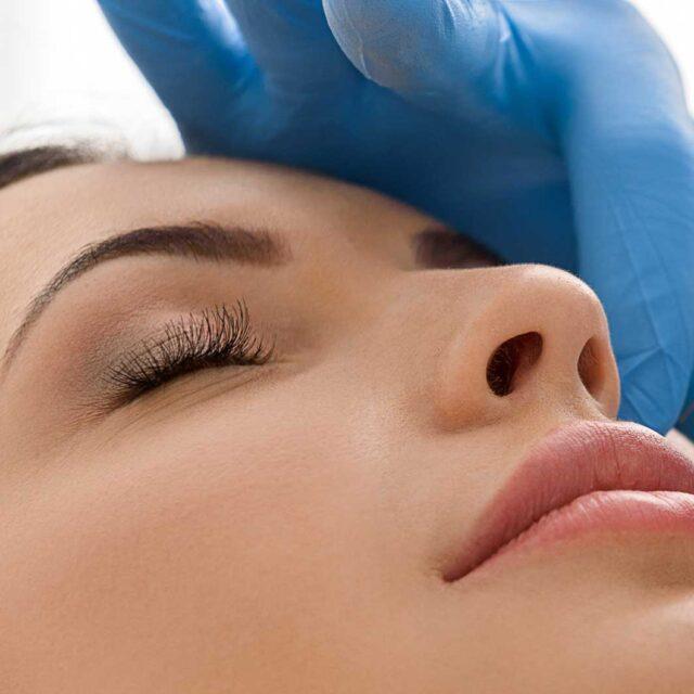 Rinomodelación, Modificación Nasal